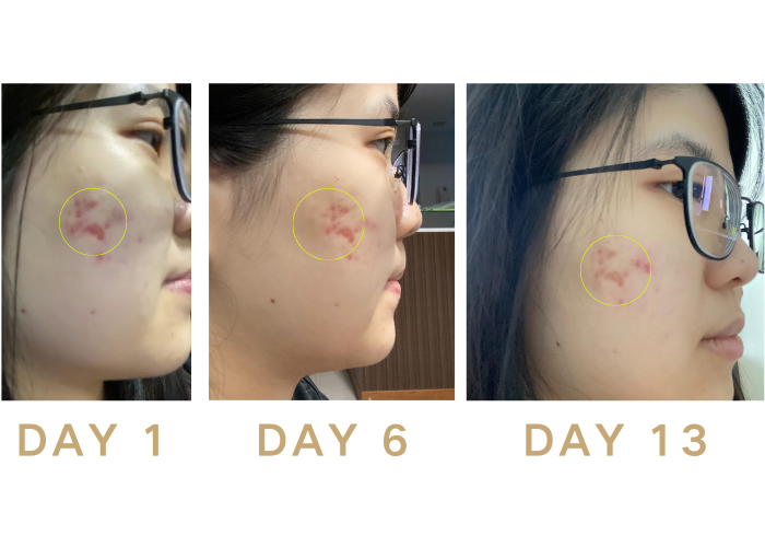 Testimonial 5 NEST glowTM Bird Nest Patches to improve skin complexion, lighten dark spots and acne marks and promote anti-aging