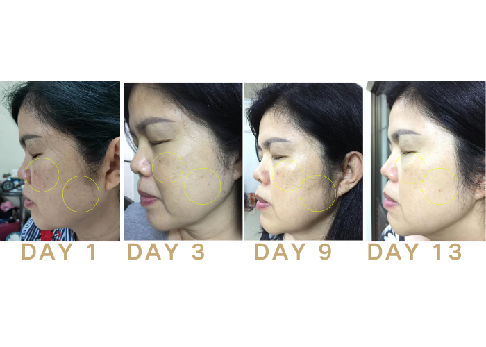 NEST glowTM Bird Nest Patches to improve skin complexion, lighten dark spots and acne marks and promote anti-aging